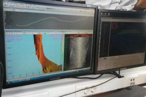 Ενάλια γεωμορφολογική έρευνα στη θαλάσσια περιοχή της Δήλου